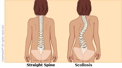 Scoliosis.