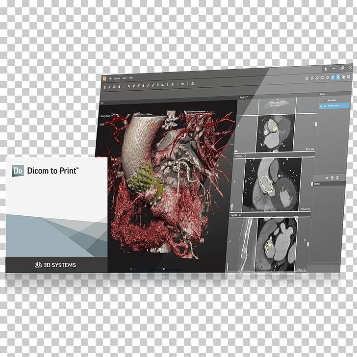 3D printing Wedding invitation DICOM Computer Software.