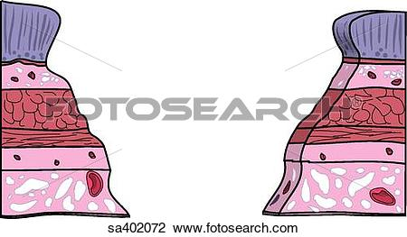 Clip Art of Layers of the lining of the stomach with ulcer.