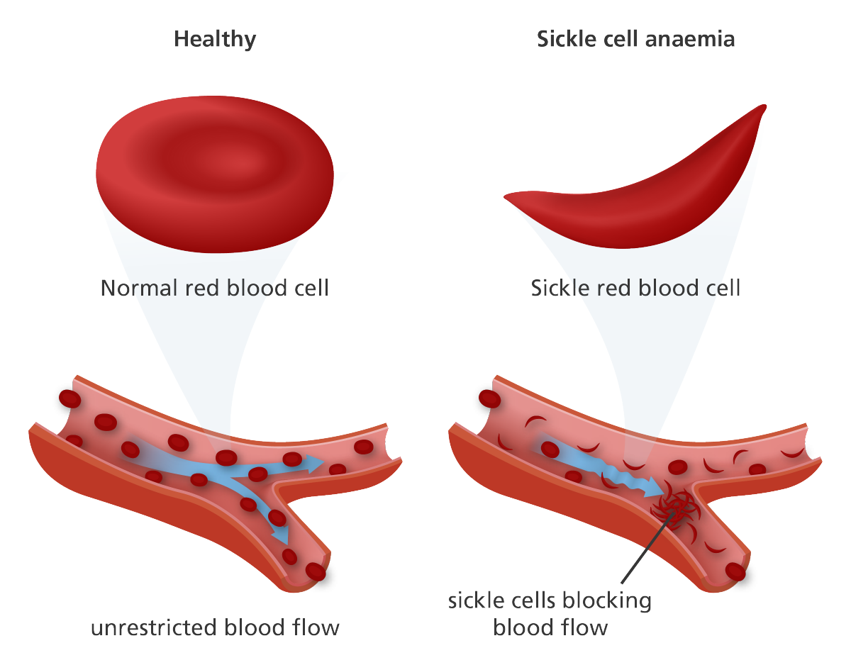 the main characteristics of sickle cell disease