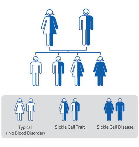 Sickle Cell Trait: A silent blood disorder in many communities.