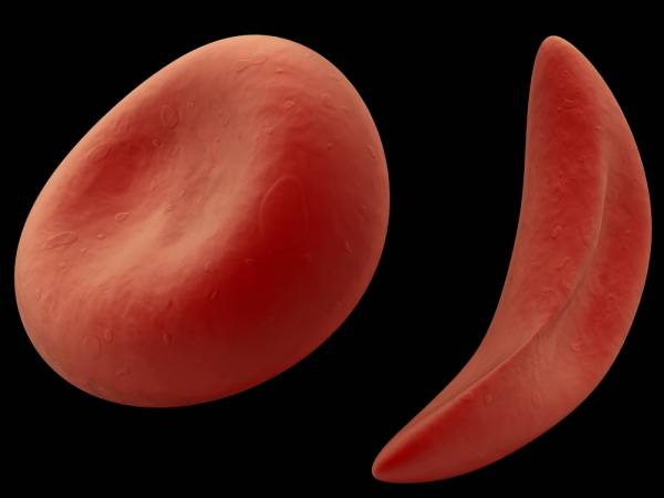 Understanding Sickle Cell Trait and Precautions For Training.