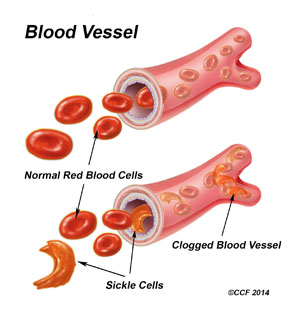What Is Sickle Cell Anemia / Sickle Cell Trait?.