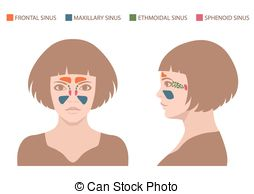 Sinus infection Vector Clipart EPS Images. 54 Sinus infection clip.