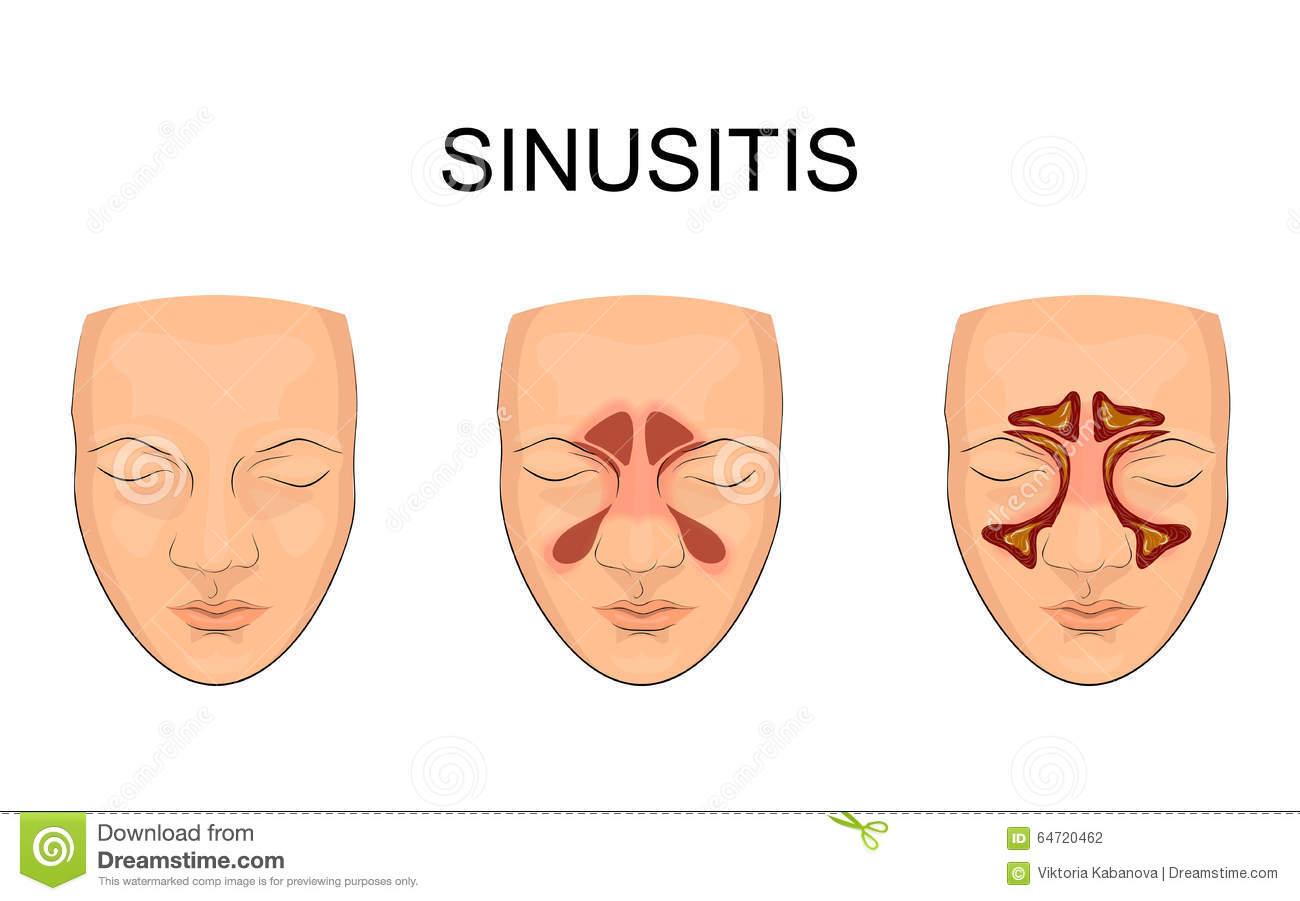 Sinusitis Stock Illustrations.