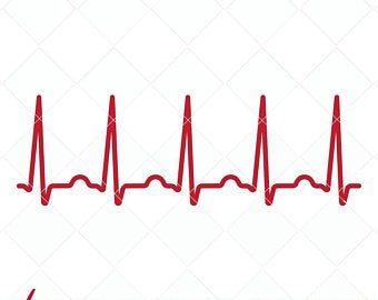 Ekg clipart sinus rhythm, Ekg sinus rhythm Transparent FREE.