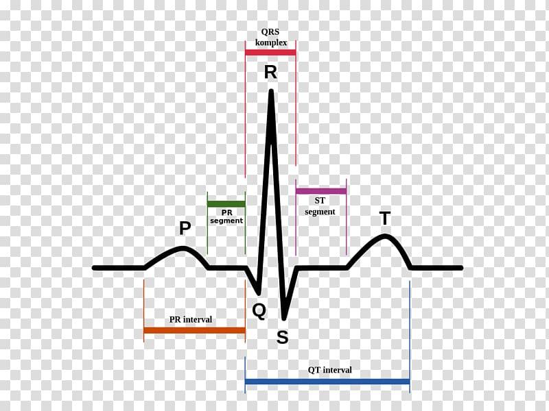 Electrocardiography Heart Sinus rhythm QRS complex Cardiac.