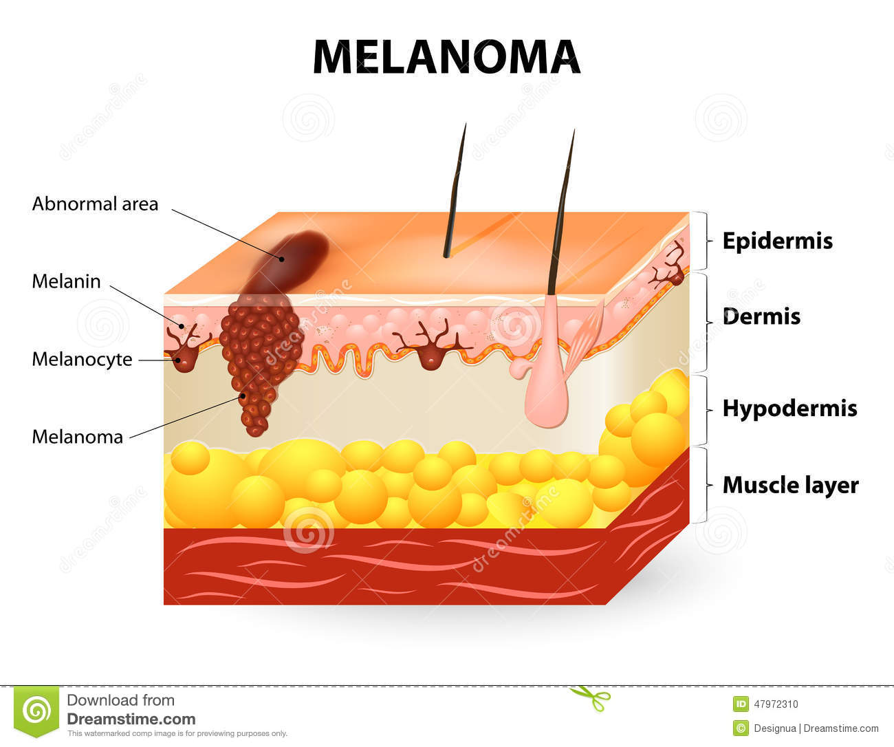 Clipart of skin cancer.