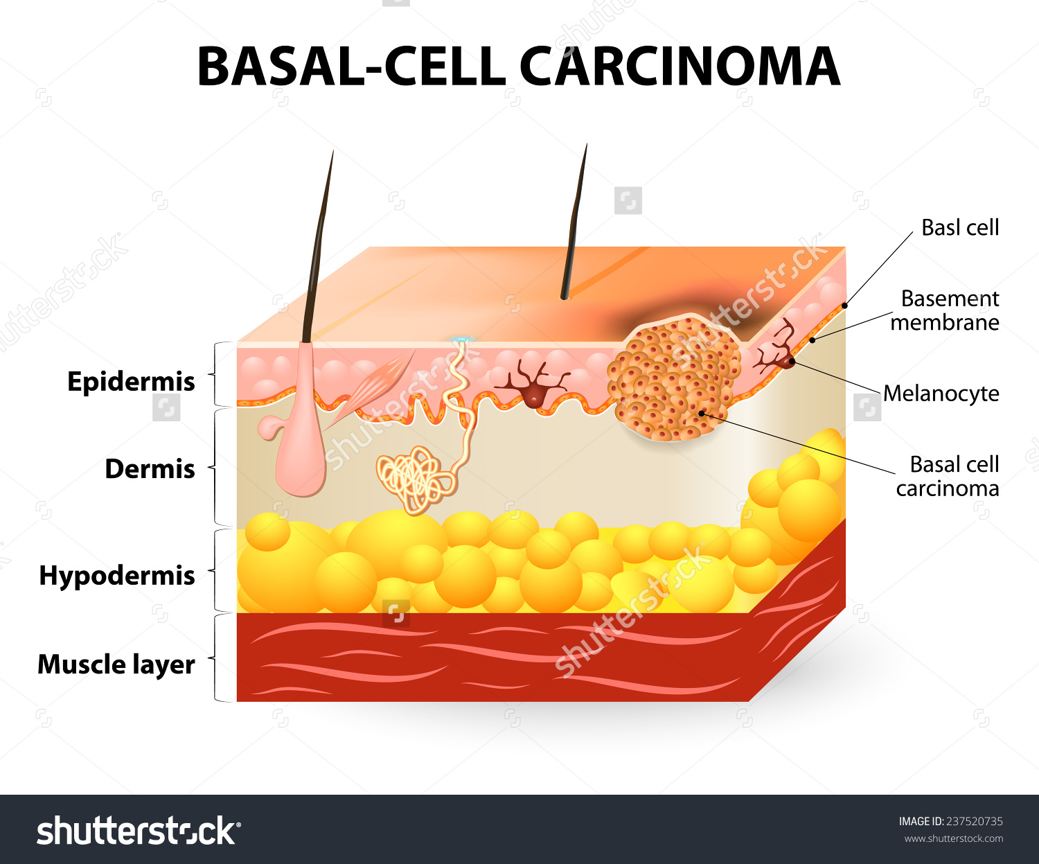 Skin Cancer Basalcell Carcinoma Basal Cell Stock Vector 237520735.