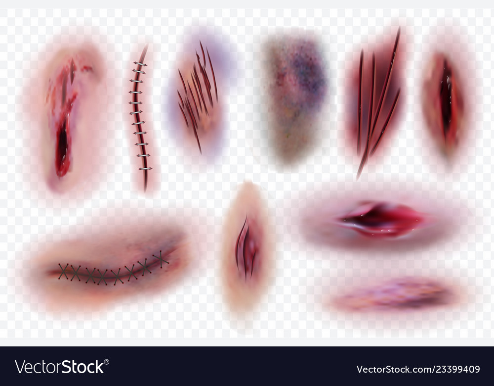 Realistic scars wound surgical stitches and.
