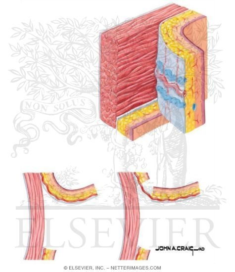 Flaps Based on Direct Cutaneous Arterial Supply.