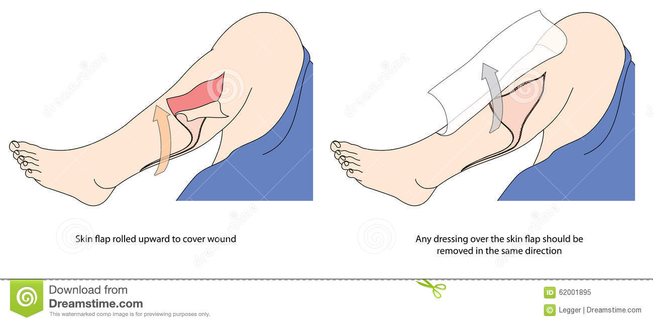 How To Cover A Skin Tear Stock Vector.