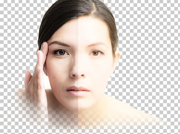 Goji Cream Berry Wrinkle Skin PNG, Clipart, Ageing, Beauty.