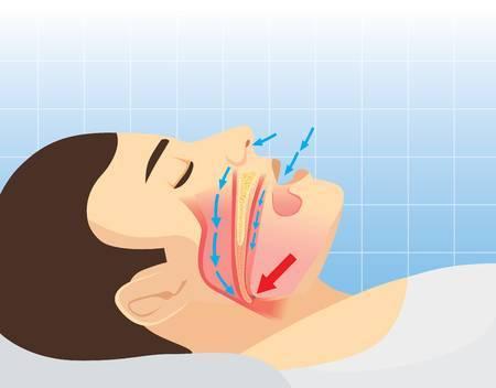 Sleep apnea clipart 4 » Clipart Portal.