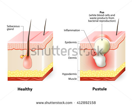 Pustules Stock Images, Royalty.