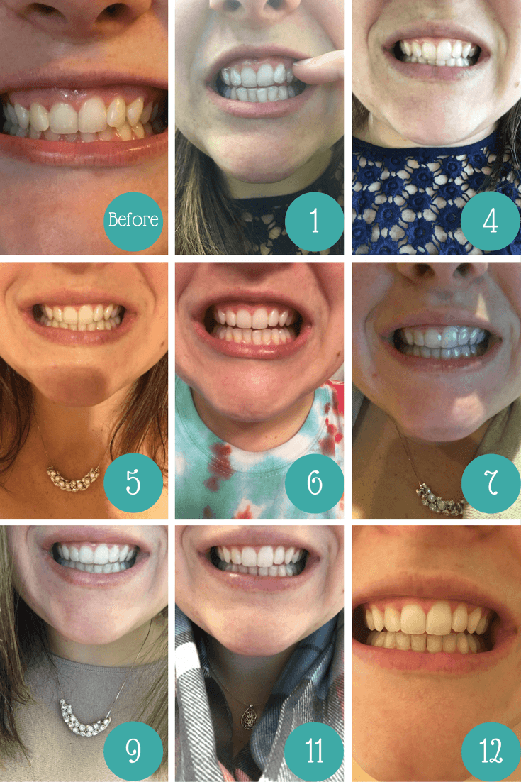 My Smile Direct Club results after 6 months of wearing.