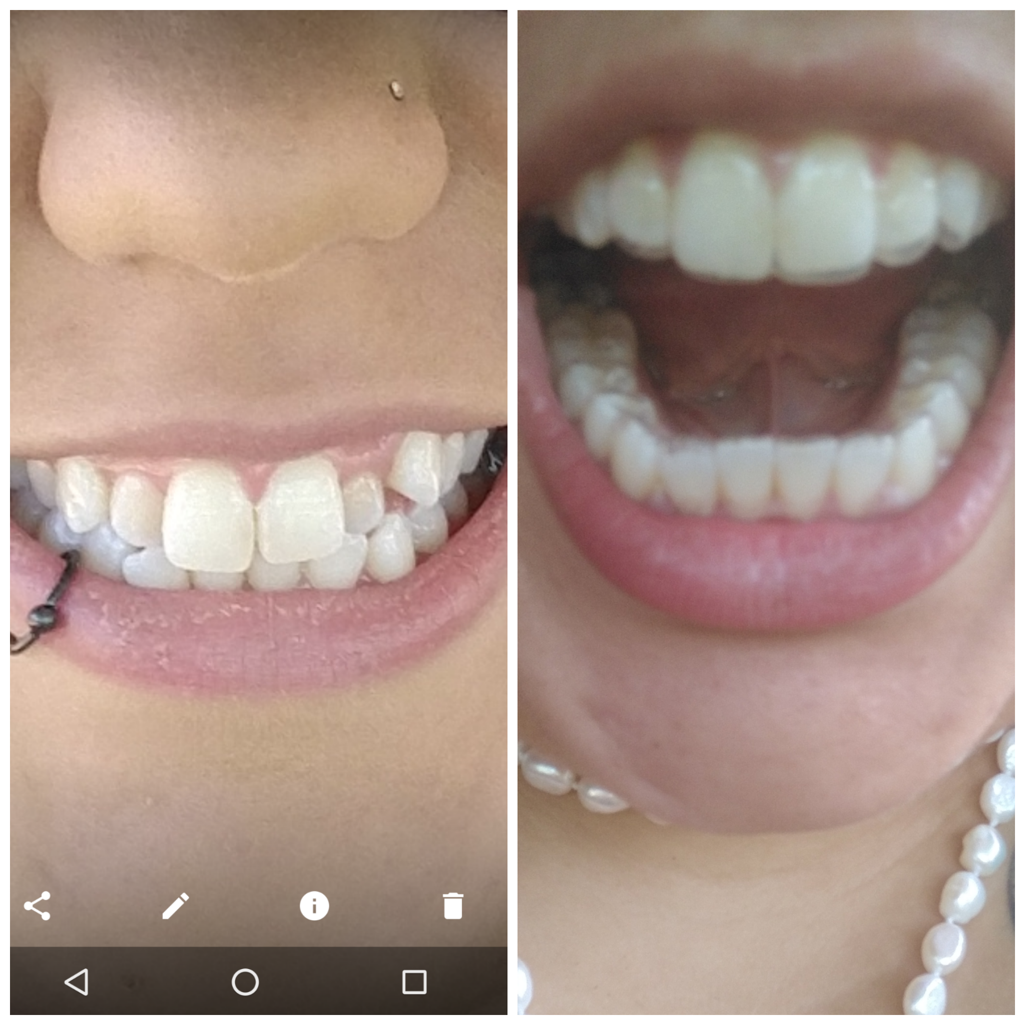 Before and almost after/w aligners in : smiledirectclub.