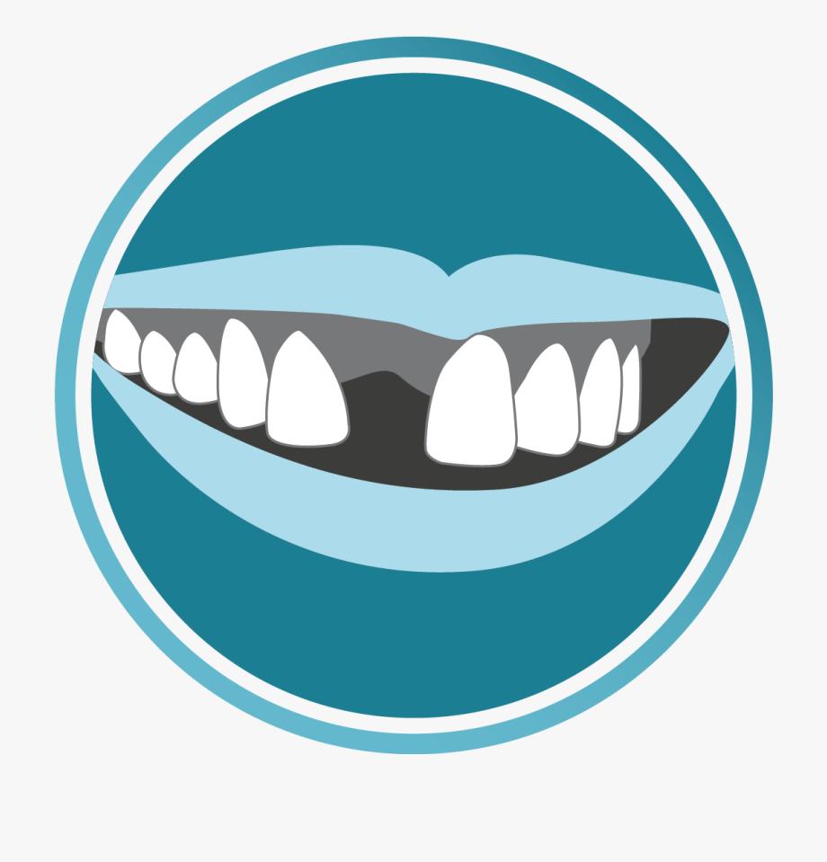 Clipart Smile Brace #1166132.