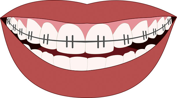 The Pros and Cons of Adult Braces.