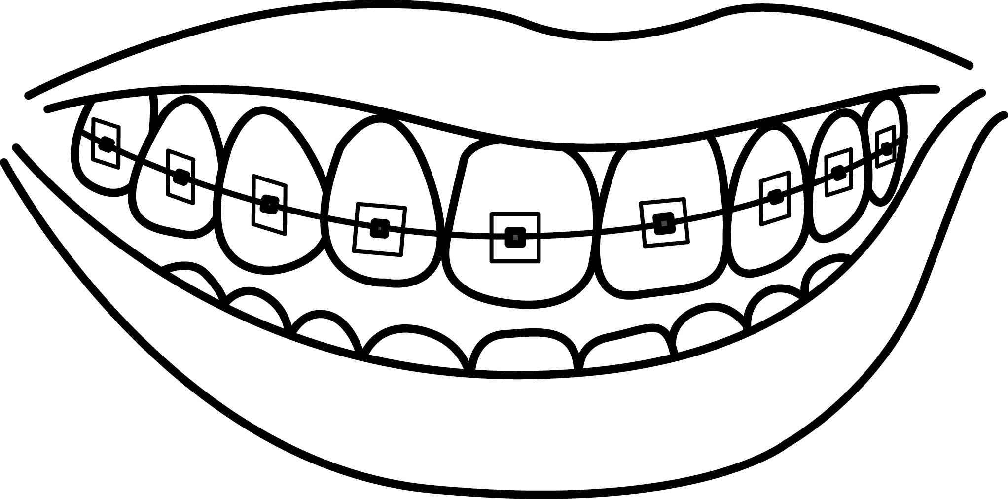 Dental braces Dentistry Human tooth Drawing.