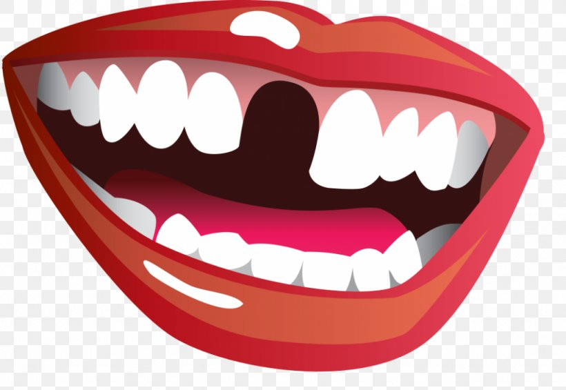 Tooth Loss Mouth Smile Clip Art, PNG, 1024x706px, Watercolor.