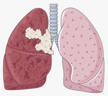 Free Lungs Clip Art with No Background.