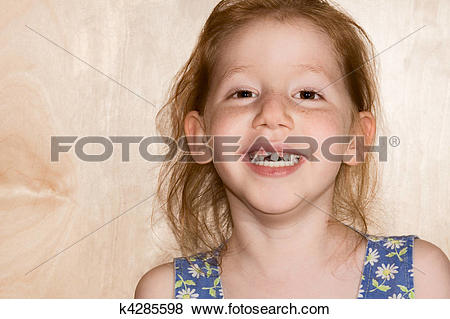 Pictures of Smiling girl showing her fallen off snaggle teeth.
