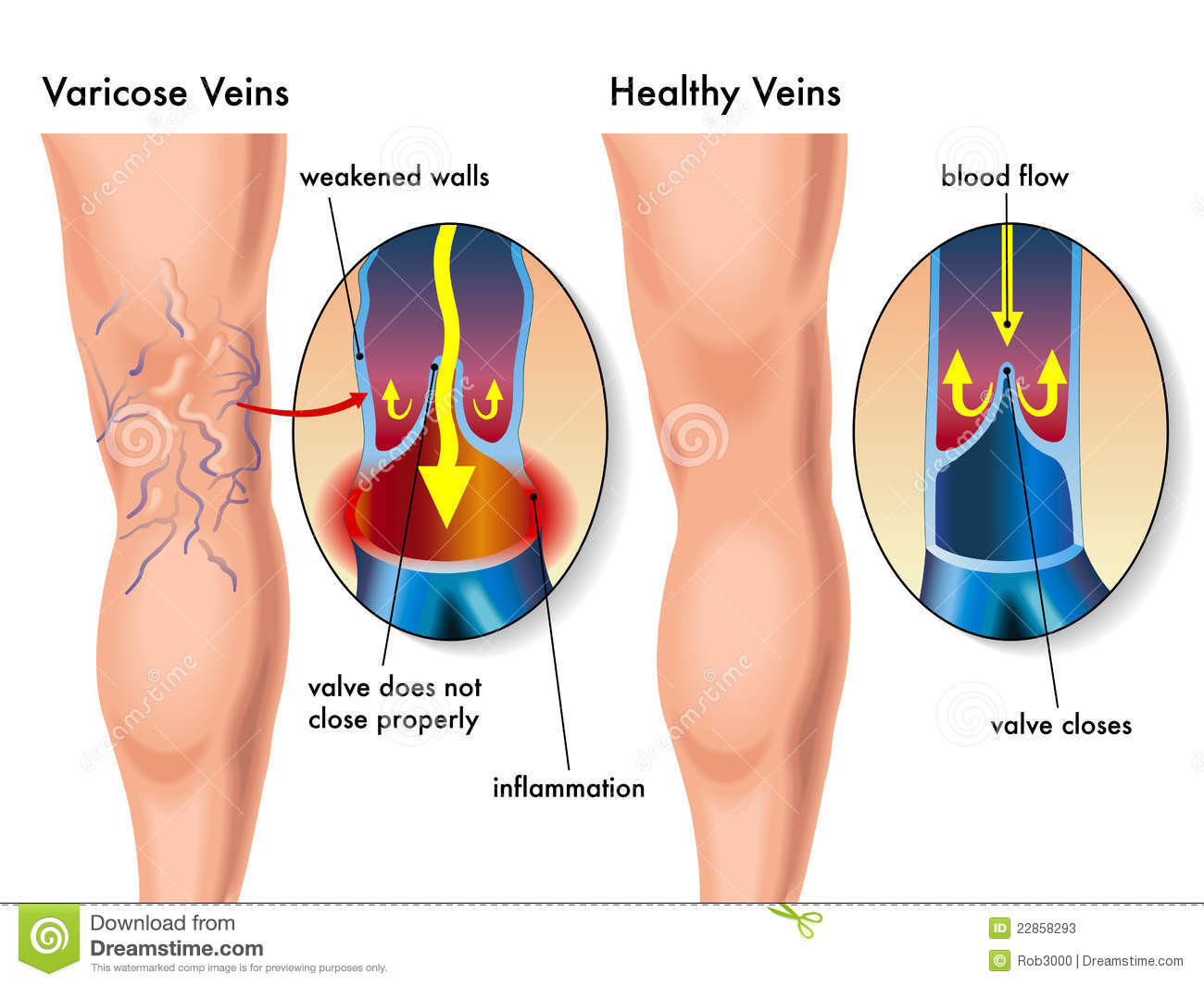 1000+ images about VARICOSE VEIN on Pinterest.