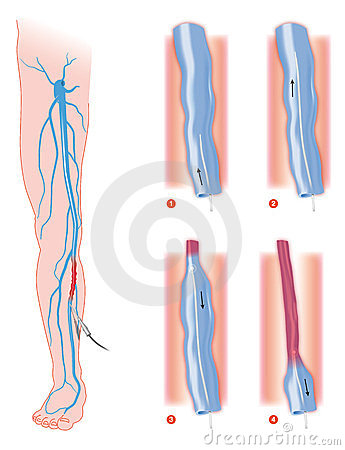 Varicose Veins. Medical Illustration Stock Photography.