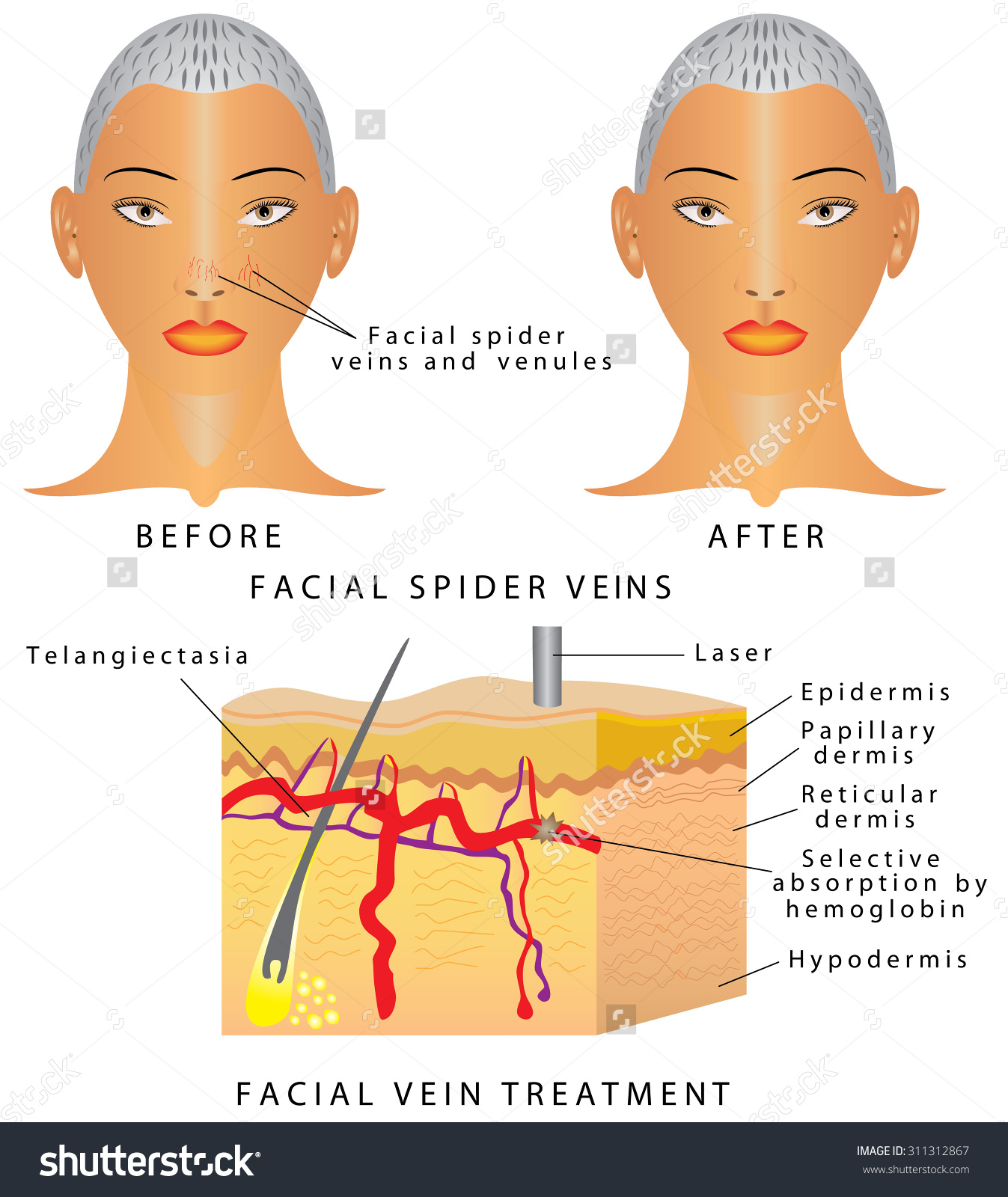 Veins On Face Typical Thread Veins Stock Vector 311312867.