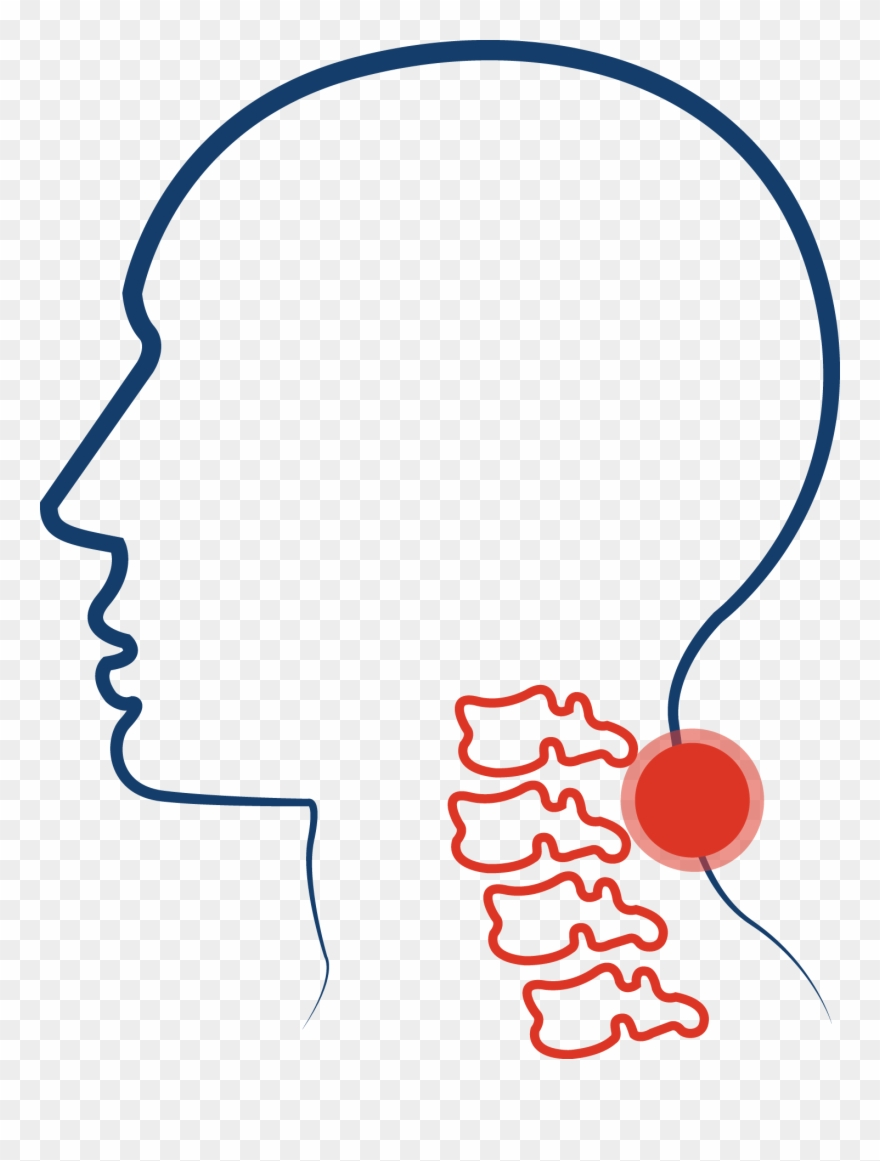 Cervical Spinal Stenosis Clipart (#979518).