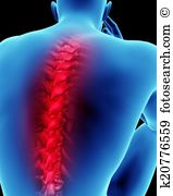 Spinal cord injury Illustrations and Clipart. 260 spinal cord.