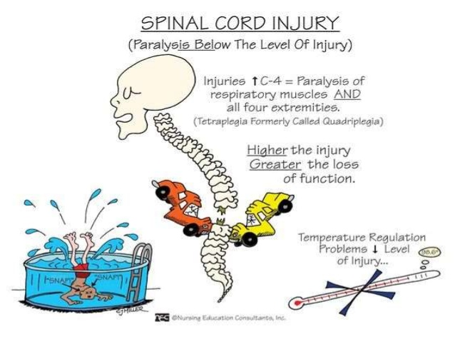 Spinal Cord Injury Clipart