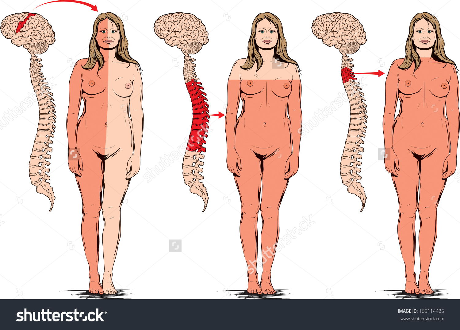 Head Spinal Cord Injuries Paralysis Some Stock Vector 165114425.