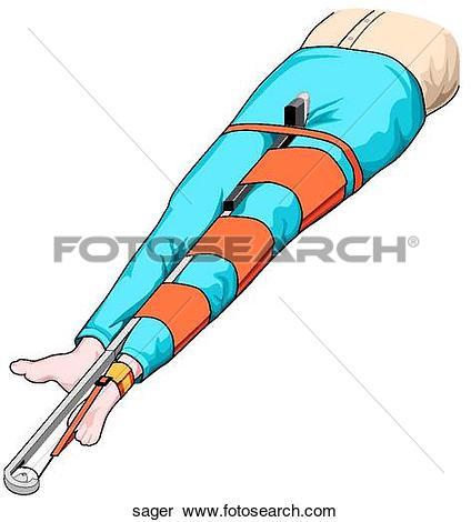 Splint Illustrations and Clip Art. 674 splint royalty free.
