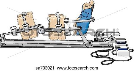 Clipart of Continuous passive motion machine consisting of a.