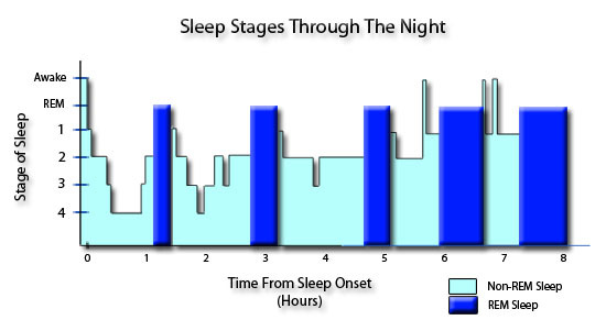 The Five Stages of Sleep: Characteristics of non.