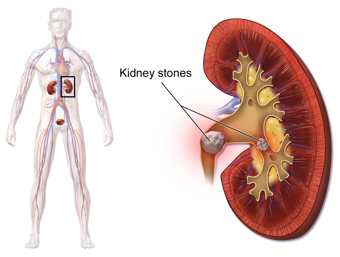 How to Prevent Kidney Stones?.