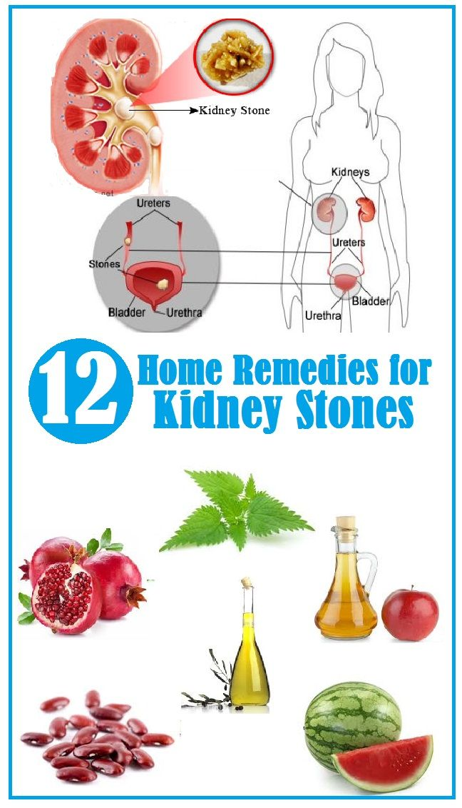 1000+ images about Kidney Stones on Pinterest.