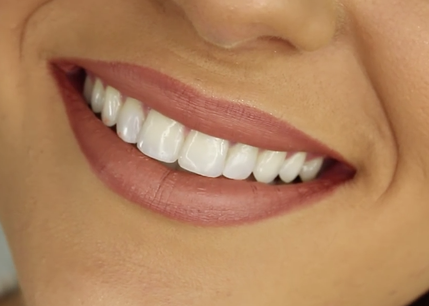 Revolution in teeth correction: straight teeth without.