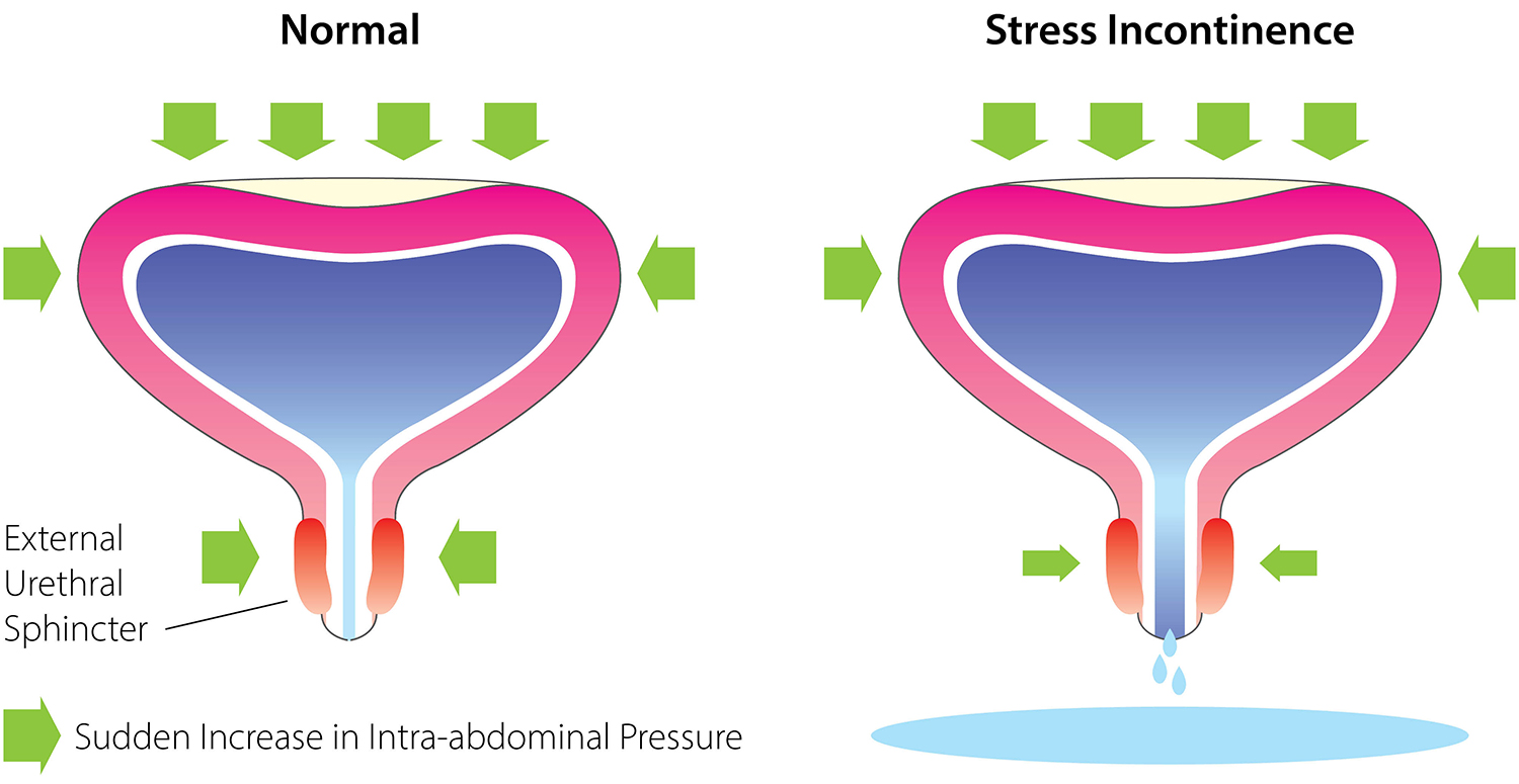 Stress Urinary Incontinence (SUI).