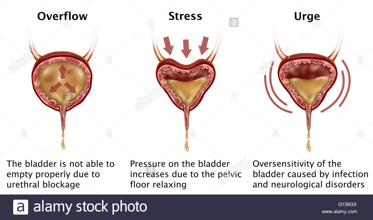Illustration Depicting Three Types Of Incontinence: Overflow.