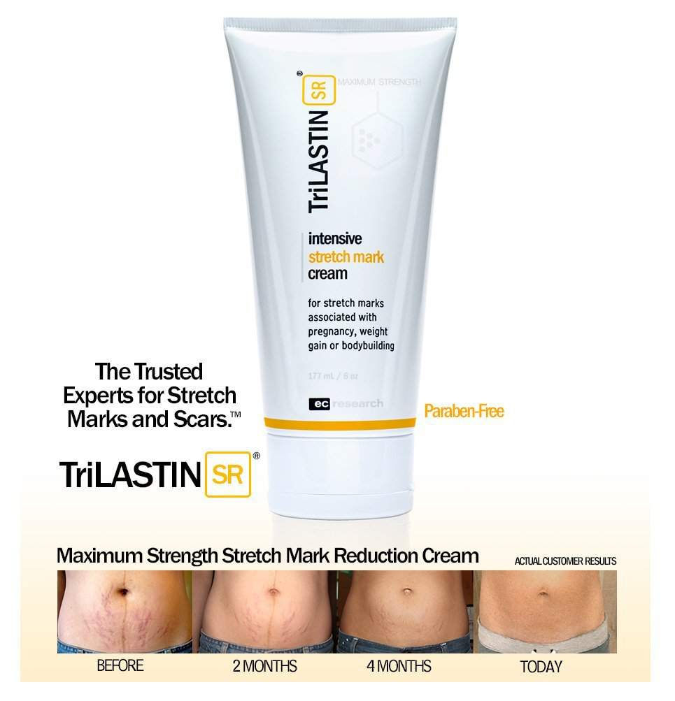 Top 10 Best Stretch Mark Removal Creams.