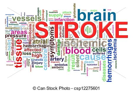 Brain stroke clipart.