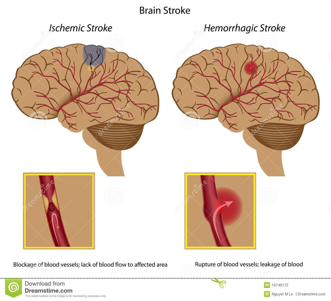 Stroke Stock Illustrations.