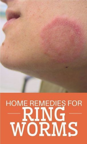 1000+ ideas about Ringworm Cure on Pinterest.