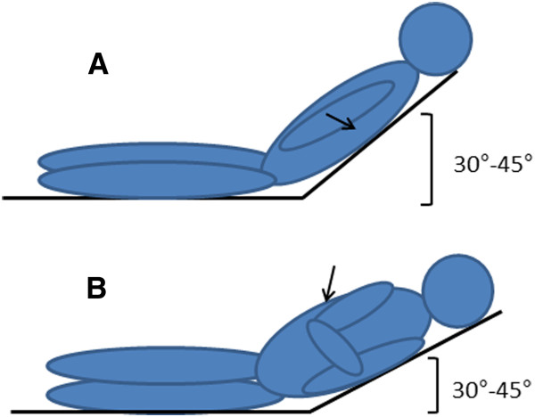 Patients' positions described in the text: A) supine with head and.
