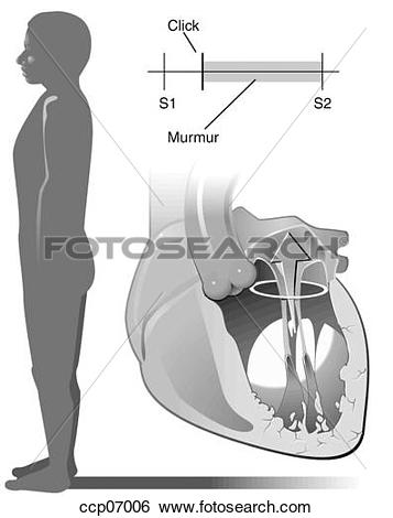 Stock Illustration of Mitral valve prolapse, supine position.