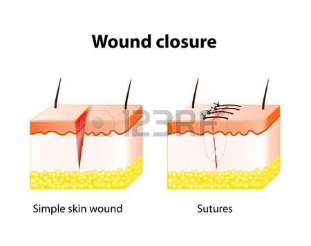 622 Suture Stock Illustrations, Cliparts And Royalty Free Suture.