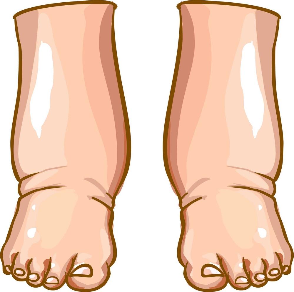 Baliga Diagnostics Pvt Ltd Bilateral pedal edema.